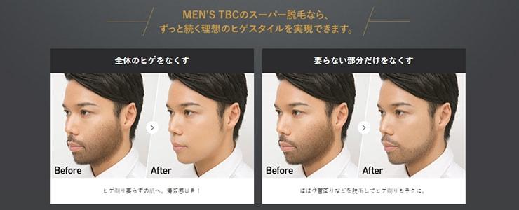 メンズTBCのデザイン髭