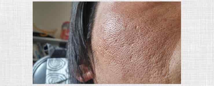 レーザー脱毛で肌を痛めた男性
