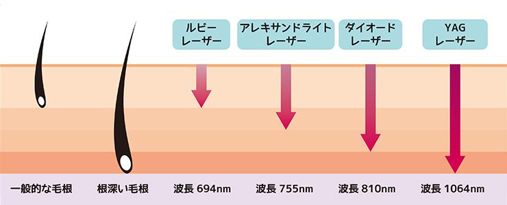 YAGレーザーと他のレーザーとの比較図